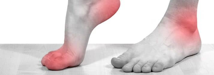 Orthotics Treatment in Ocoee FL